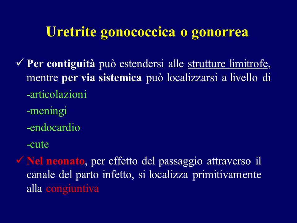 Uretrite gonococcica o gonorrea Per contiguità può estendersi alle strutture limitrofe, mentre per via sistemica può localizzarsi a livello di -artico