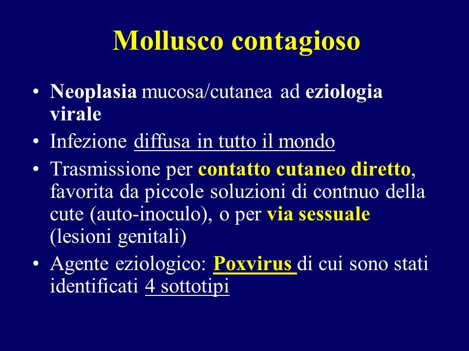 Mollusco contagioso: patogenesi e istologia INCUBAZIONE: 2-7 settimane dallinoculo La malattia si manifesta quando i virioni iniziano a replicarsi in corrispondenza delle cellule degli strati inferiori dellepidermide, estendendosi poi superiormente La membrana basale rimane intatta, si assiste quindi allipertrofia delle cellule epidermiche, che aggettano sulla superficie cutanea, simulando una massa tumorale Il citoplasma delle cellule ipertrofiche è occupato da una voluminosa massa granulare (il corpo del mollusco)
