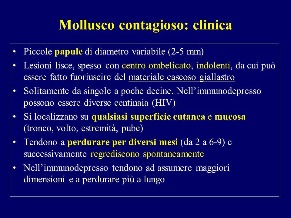 Mollusco contagioso: clinica Piccole papule di diametro variabile (2-5 mm) Lesioni lisce, spesso con centro ombelicato, indolenti, da cui può essere f