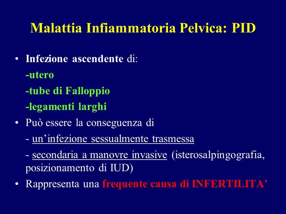 Malattia Infiammatoria Pelvica: PID Infezione ascendente di: -utero -tube di Falloppio -legamenti larghi Può essere la conseguenza di - uninfezione se
