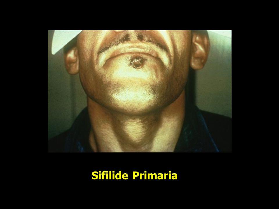 Sifilide Primaria