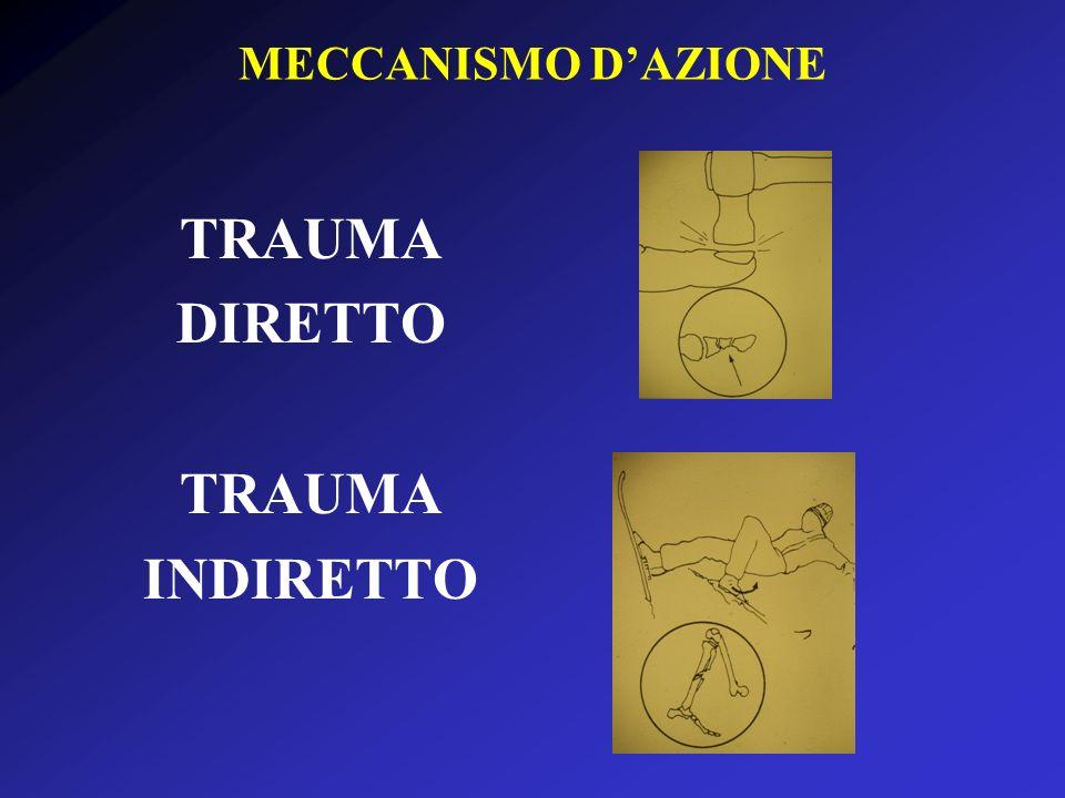 MECCANISMO DAZIONE TRAUMA DIRETTO TRAUMA INDIRETTO