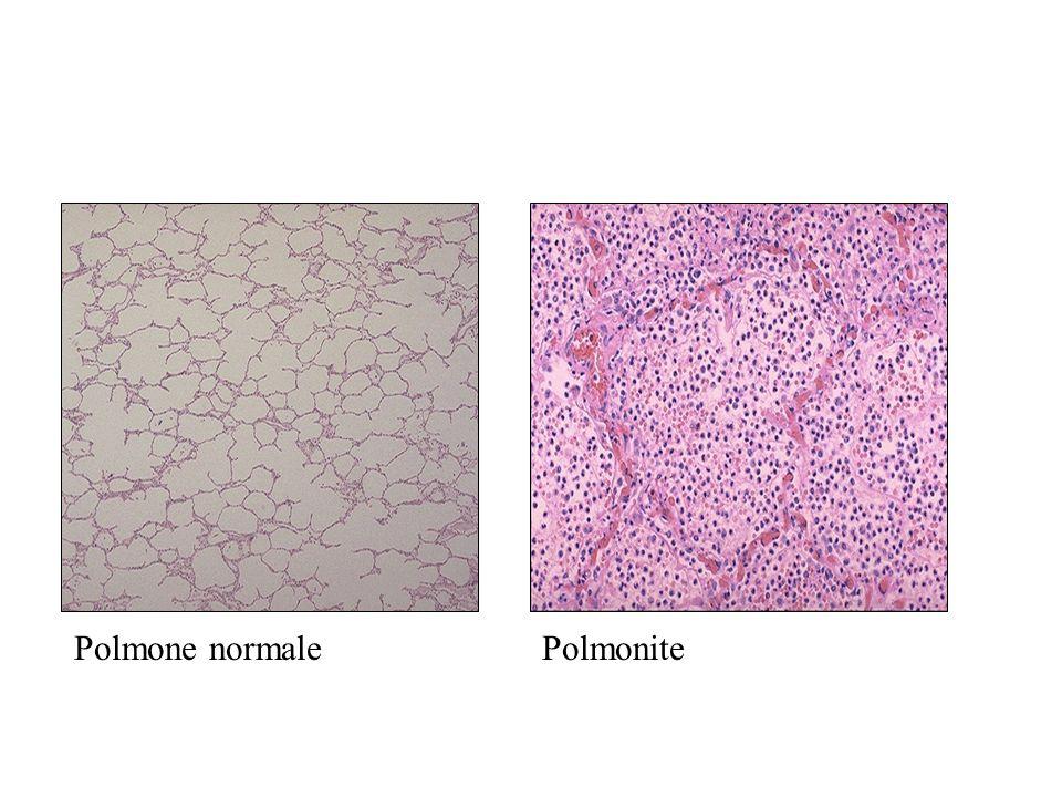 PolmonitePolmone normale