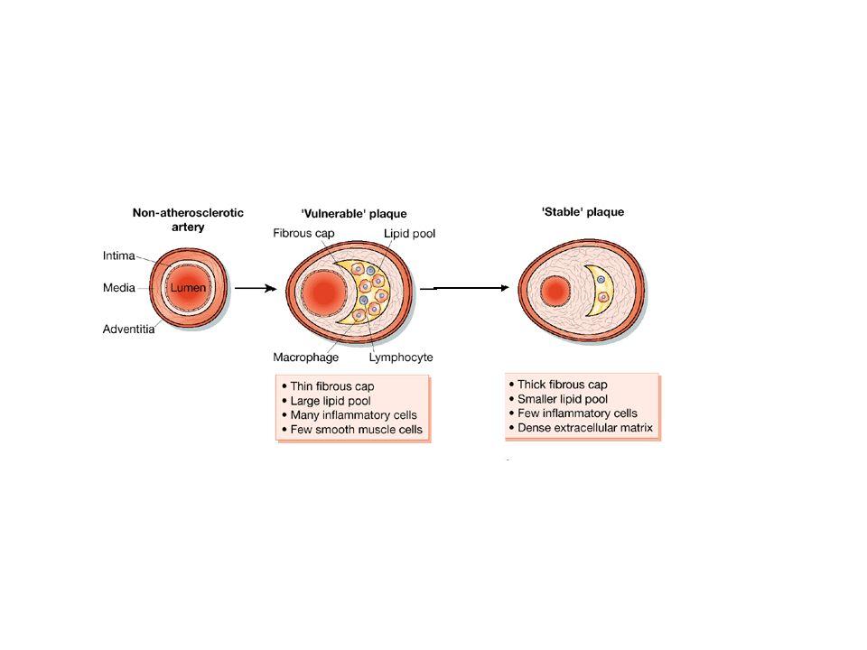 Inizio lesione: eliminazione cause APPROCCI PREVENTIVI E TERAPEUTICI Progressione della placca: inibizione formazione di placca instabile Complicanze trombotiche: riduzione fattori favorenti formazione di trombi Stabilizzazione della placca