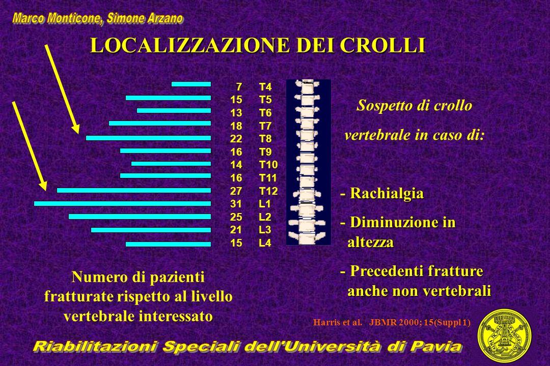 LOCALIZZAZIONE DEI CROLLI Numero di pazienti fratturate rispetto al livello vertebrale interessato Sospetto di crollo vertebrale in caso di: Rachialgi