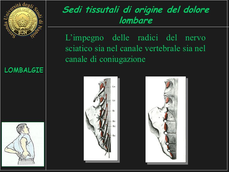 Limpegno delle radici del nervo sciatico sia nel canale vertebrale sia nel canale di coniugazione LOMBALGIE Sedi tissutali di origine del dolore lombare