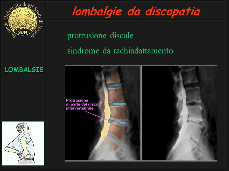 protrusione discale LOMBALGIE lombalgie da discopatia sindrome da rachiadattamento