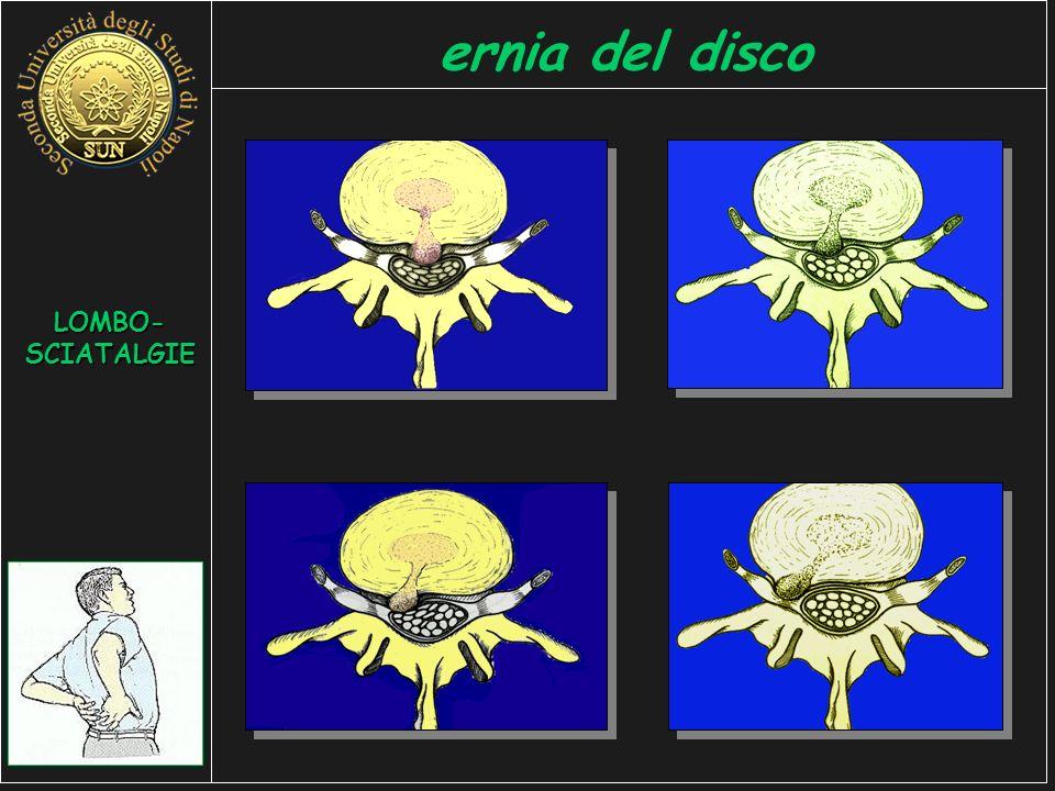 LOMBO- SCIATALGIE ernia del disco
