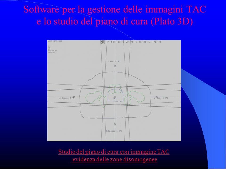 Software per la gestione delle immagini TAC e lo studio del piano di cura (Plato 3D) Studio del piano di cura con immagine TAC evidenza delle zone disomogenee