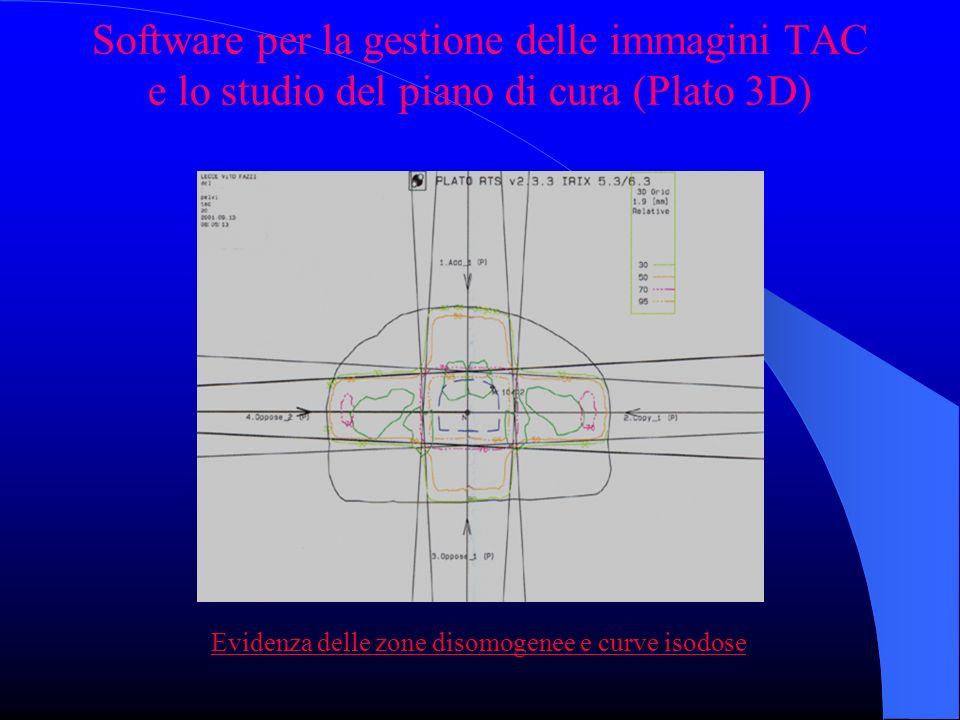 Software per la gestione delle immagini TAC e lo studio del piano di cura (Plato 3D) Evidenza delle zone disomogenee e curve isodose
