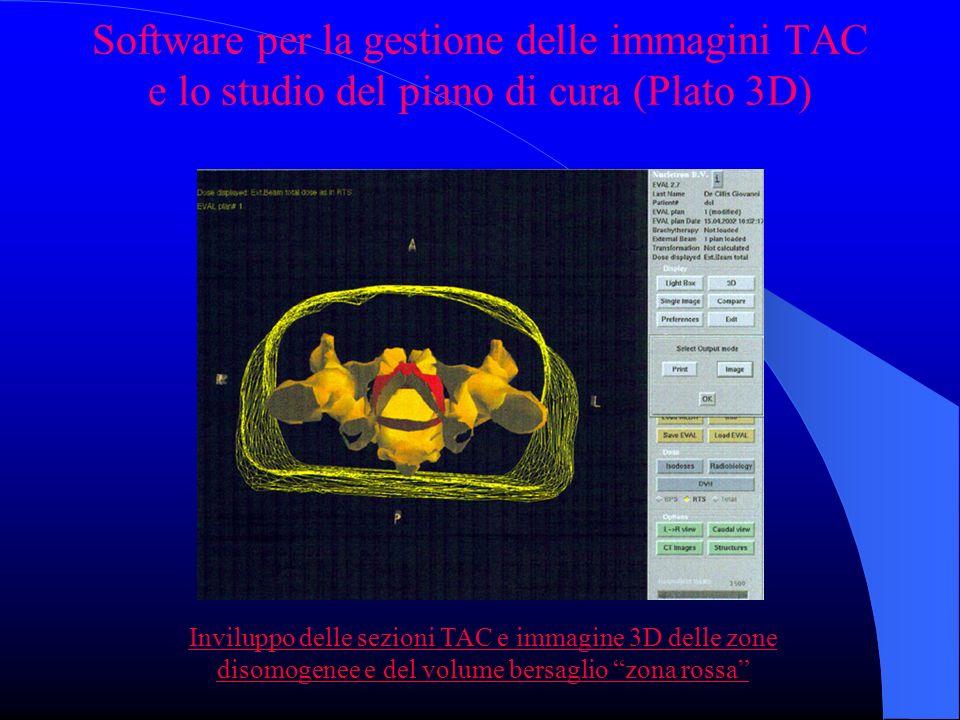 Software per la gestione delle immagini TAC e lo studio del piano di cura (Plato 3D) Inviluppo delle sezioni TAC e immagine 3D delle zone disomogenee e del volume bersaglio zona rossa