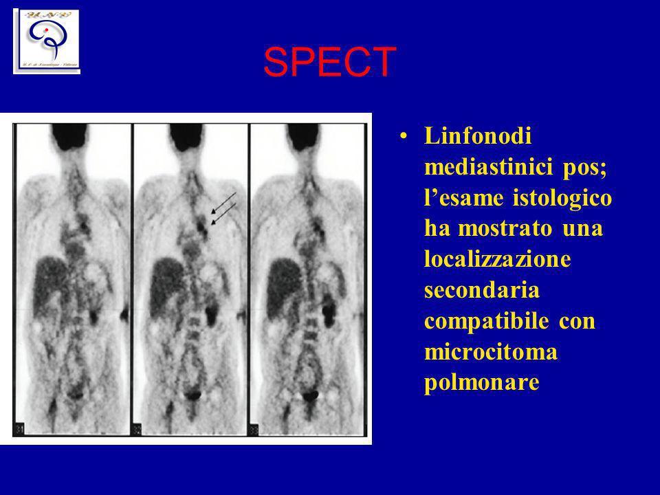 SPECT Linfonodi mediastinici pos; lesame istologico ha mostrato una localizzazione secondaria compatibile con microcitoma polmonare
