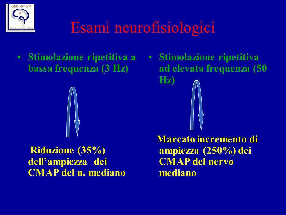 Esami neurofisiologici Stimolazione ripetitiva ad elevata frequenza (50 Hz ) Marcato incremento di ampiezza (250%) dei CMAP del nervo mediano Stimolaz
