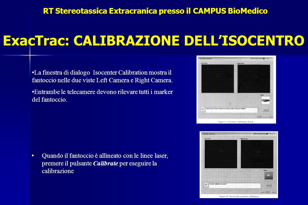 RT Stereotassica Extracranica presso il CAMPUS BioMedico ExacTrac: ExacTrac: CALIBRAZIONE DELLISOCENTRO Quando il fantoccio è allineato con le linee laser, premere il pulsante Calibrate per eseguire la calibrazione La finestra di dialogo Isocenter Calibration mostra il fantoccio nelle due viste Left Camera e Right Camera.