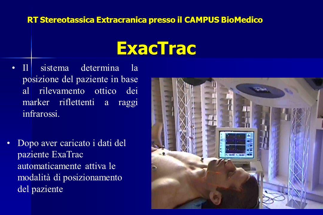 RT Stereotassica Extracranica presso il CAMPUS BioMedico ExacTrac Il sistema determina la posizione del paziente in base al rilevamento ottico dei marker riflettenti a raggi infrarossi.