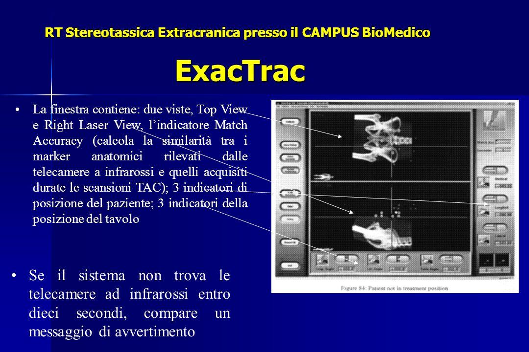 RT Stereotassica Extracranica presso il CAMPUS BioMedico ExacTrac La finestra contiene: due viste, Top View e Right Laser View, lindicatore Match Accuracy (calcola la similarità tra i marker anatomici rilevati dalle telecamere a infrarossi e quelli acquisiti durate le scansioni TAC); 3 indicatori di posizione del paziente; 3 indicatori della posizione del tavolo Se il sistema non trova le telecamere ad infrarossi entro dieci secondi, compare un messaggio di avvertimento
