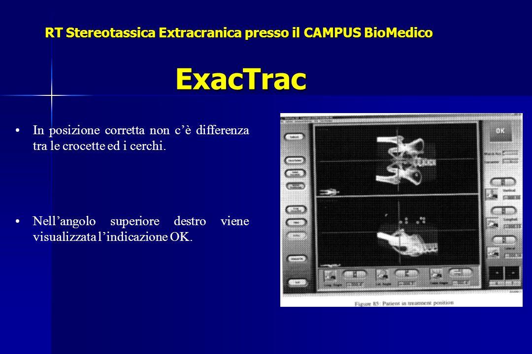 RT Stereotassica Extracranica presso il CAMPUS BioMedico ExacTrac In posizione corretta non cè differenza tra le crocette ed i cerchi. Nellangolo supe