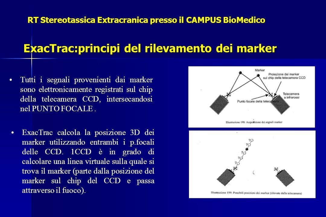 RT Stereotassica Extracranica presso il CAMPUS BioMedico ExacTrac:principi del rilevamento dei marker Tutti i segnali provenienti dai marker sono elettronicamente registrati sul chip della telecamera CCD, intersecandosi nel PUNTO FOCALE.