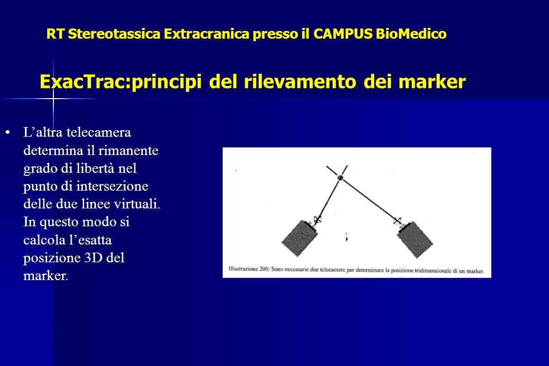 RT Stereotassica Extracranica presso il CAMPUS BioMedico ExacTrac:principi del rilevamento dei marker Laltra telecamera determina il rimanente grado di libertà nel punto di intersezione delle due linee virtuali.