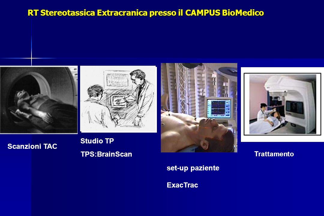 Studio TP TPS:BrainScan RT Stereotassica Extracranica presso il CAMPUS BioMedico set-up paziente ExacTrac Scanzioni TAC Trattamento