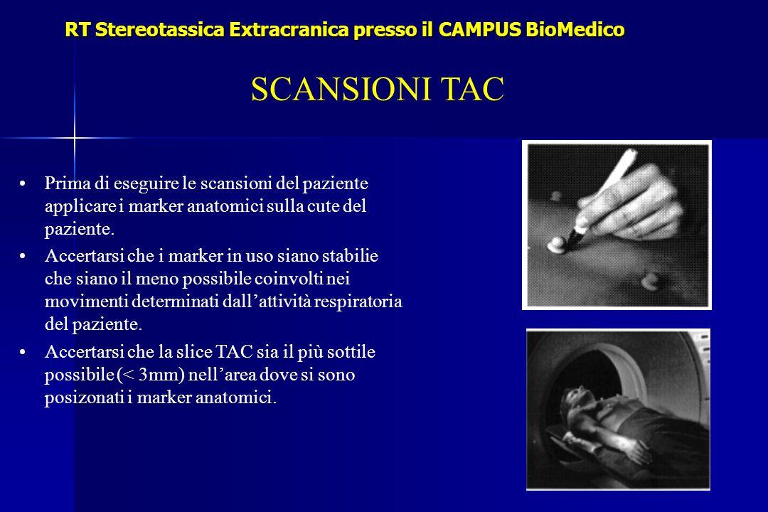 RT Stereotassica Extracranica presso il CAMPUS BioMedico SCANSIONI TAC Prima di eseguire le scansioni del paziente applicare i marker anatomici sulla cute del paziente.