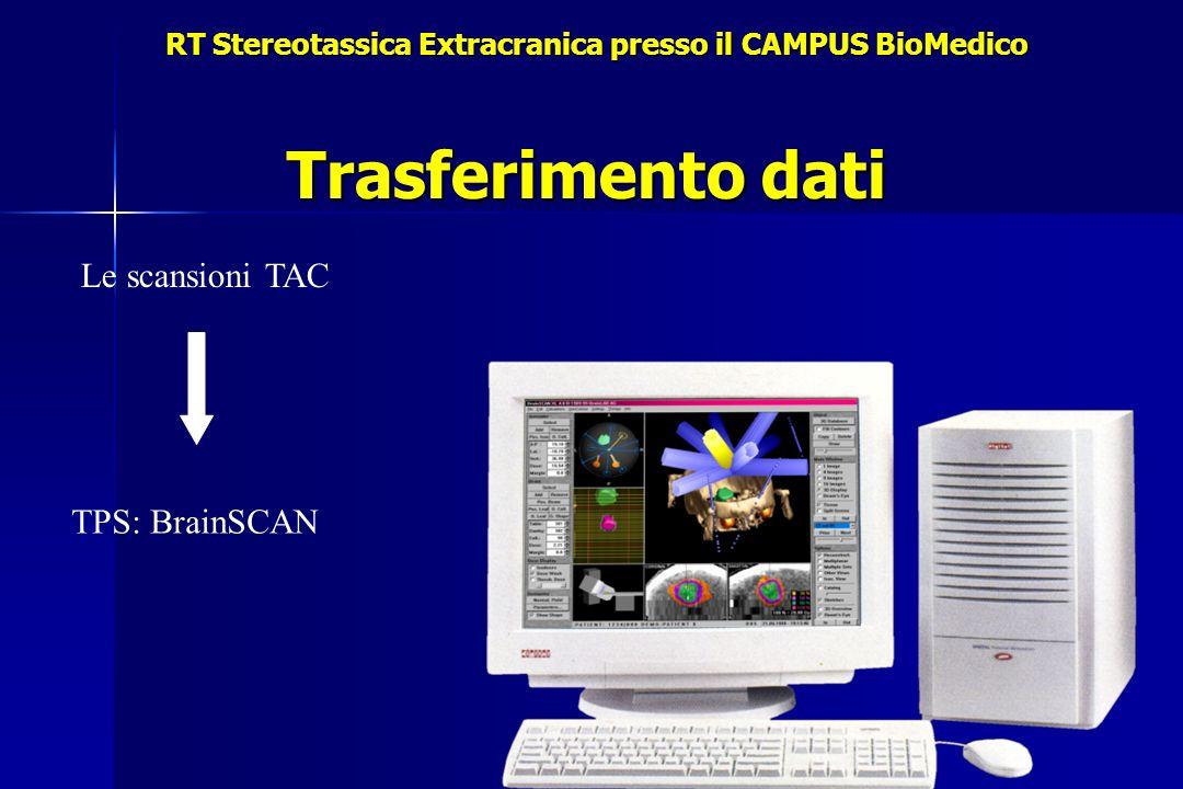 Trasferimento dati RT Stereotassica Extracranica presso il CAMPUS BioMedico Le scansioni TAC TPS: BrainSCAN