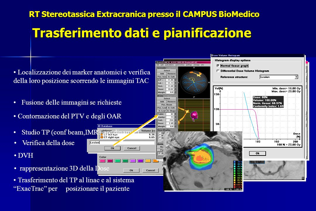 Localizzazione dei marker anatomici e verifica della loro posizione scorrendo le immagini TAC Trasferimento del TP al linac e al sistema ExacTrac per