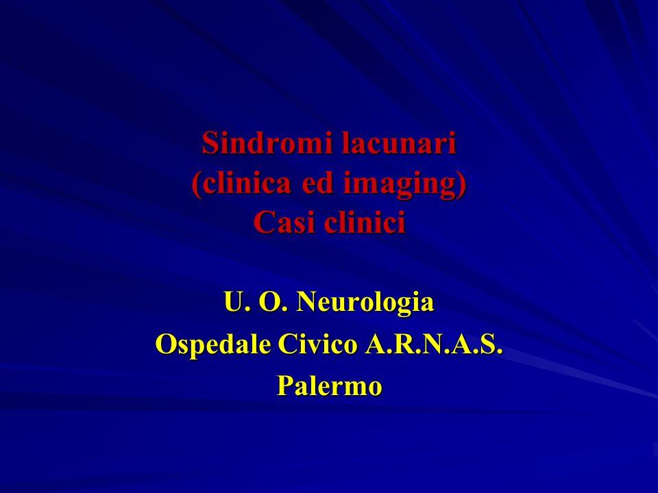 Definizione Le sindromi lacunari sono infarti di piccole dimensioni(da 3mm a 1,5-2 cm), causate in genere dallocclusione di una singola arteria perforante profonda