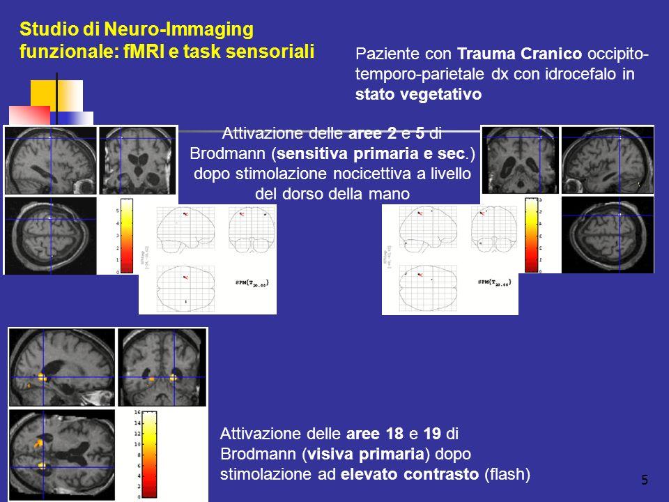 5 Studio di Neuro-Immaging funzionale: fMRI e task sensoriali Attivazione delle aree 18 e 19 di Brodmann (visiva primaria) dopo stimolazione ad elevato contrasto (flash) Paziente con Trauma Cranico occipito- temporo-parietale dx con idrocefalo in stato vegetativo Attivazione delle aree 2 e 5 di Brodmann (sensitiva primaria e sec.) dopo stimolazione nocicettiva a livello del dorso della mano