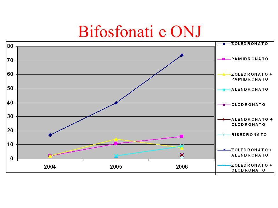 Bifosfonati e ONJ