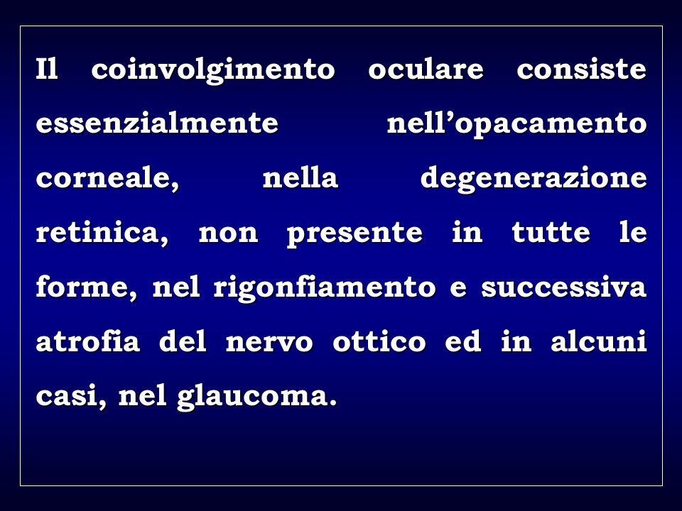 a aa a aa Il coinvolgimento oculare consiste essenzialmente nellopacamento corneale, nella degenerazione retinica, non presente in tutte le forme, nel