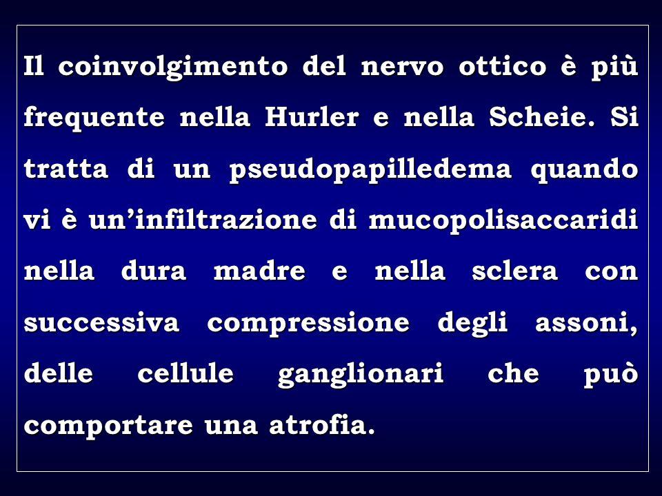 a aa a aa Il coinvolgimento del nervo ottico è più frequente nella Hurler e nella Scheie.