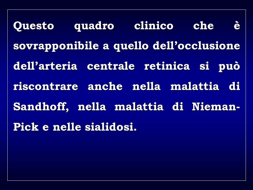 a aa a aa Questo quadro clinico che è sovrapponibile a quello dellocclusione dellarteria centrale retinica si può riscontrare anche nella malattia di Sandhoff, nella malattia di Nieman- Pick e nelle sialidosi.