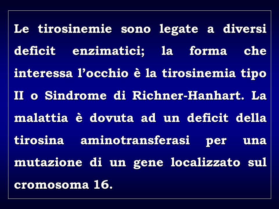 a aa a aa Le tirosinemie sono legate a diversi deficit enzimatici; la forma che interessa locchio è la tirosinemia tipo II o Sindrome di Richner-Hanha