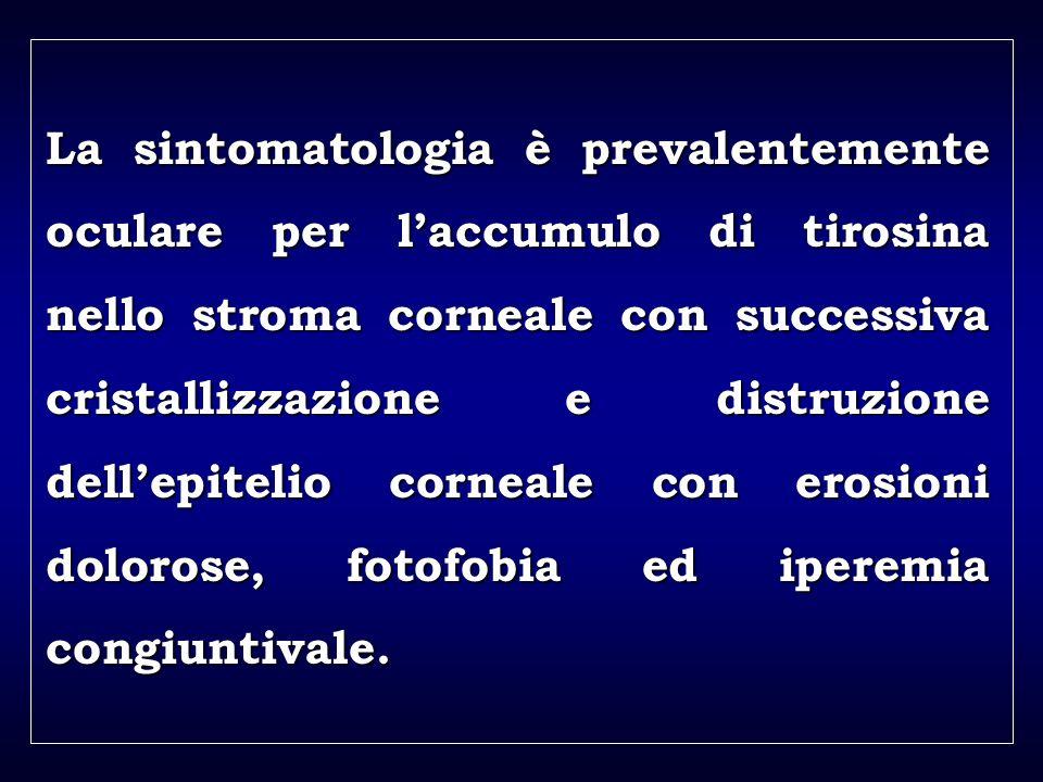 a aa a aa La sintomatologia è prevalentemente oculare per laccumulo di tirosina nello stroma corneale con successiva cristallizzazione e distruzione dellepitelio corneale con erosioni dolorose, fotofobia ed iperemia congiuntivale.