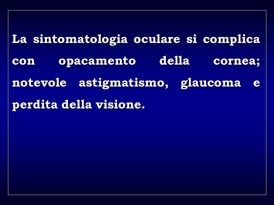 a aa a aa La sintomatologia oculare si complica con opacamento della cornea; notevole astigmatismo, glaucoma e perdita della visione.