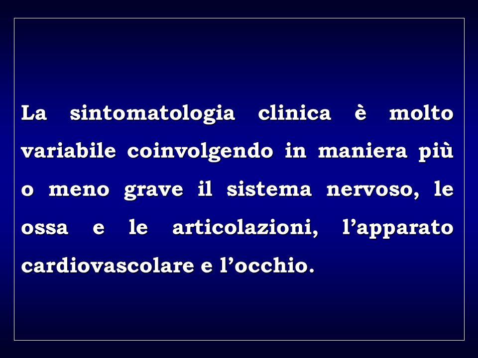a aa a aa La sintomatologia clinica è molto variabile coinvolgendo in maniera più o meno grave il sistema nervoso, le ossa e le articolazioni, lapparato cardiovascolare e locchio.