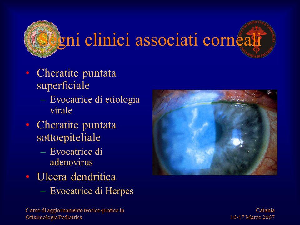 Catania 16-17 Marzo 2007 Corso di aggiornamento teorico-pratico in Oftalmologia Pediatrica Segni clinici associati corneali Cheratite puntata superfic