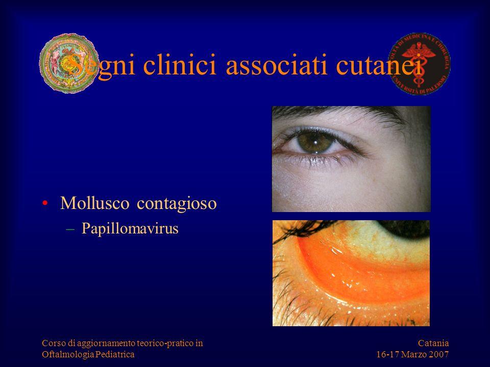 Catania 16-17 Marzo 2007 Corso di aggiornamento teorico-pratico in Oftalmologia Pediatrica Segni clinici associati cutanei Mollusco contagioso –Papill