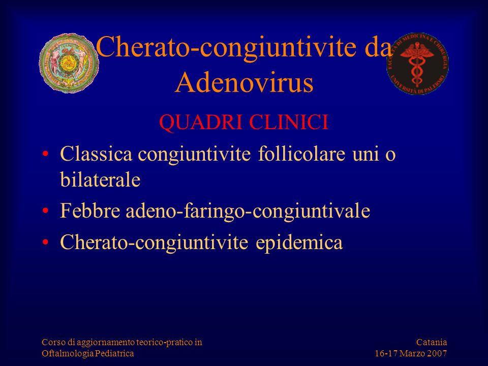 Catania 16-17 Marzo 2007 Corso di aggiornamento teorico-pratico in Oftalmologia Pediatrica Cherato-congiuntivite da Adenovirus QUADRI CLINICI Classica