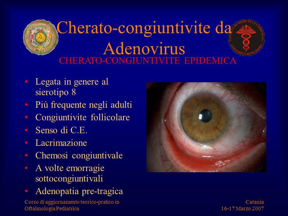 Catania 16-17 Marzo 2007 Corso di aggiornamento teorico-pratico in Oftalmologia Pediatrica Cherato-congiuntivite da Adenovirus Legata in genere al sie