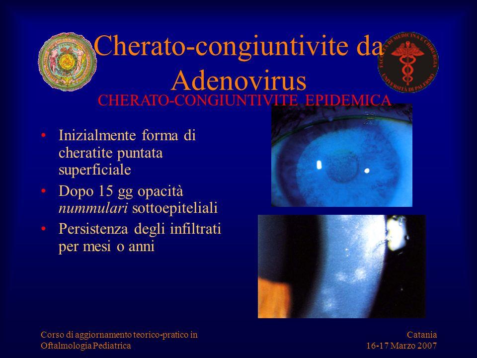 Catania 16-17 Marzo 2007 Corso di aggiornamento teorico-pratico in Oftalmologia Pediatrica Cherato-congiuntivite da Adenovirus Inizialmente forma di c