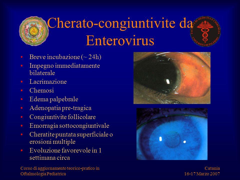 Catania 16-17 Marzo 2007 Corso di aggiornamento teorico-pratico in Oftalmologia Pediatrica Cherato-congiuntivite da Enterovirus Breve incubazione (~ 2