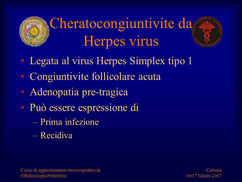 Catania 16-17 Marzo 2007 Corso di aggiornamento teorico-pratico in Oftalmologia Pediatrica Cheratocongiuntivite da Herpes virus Legata al virus Herpes