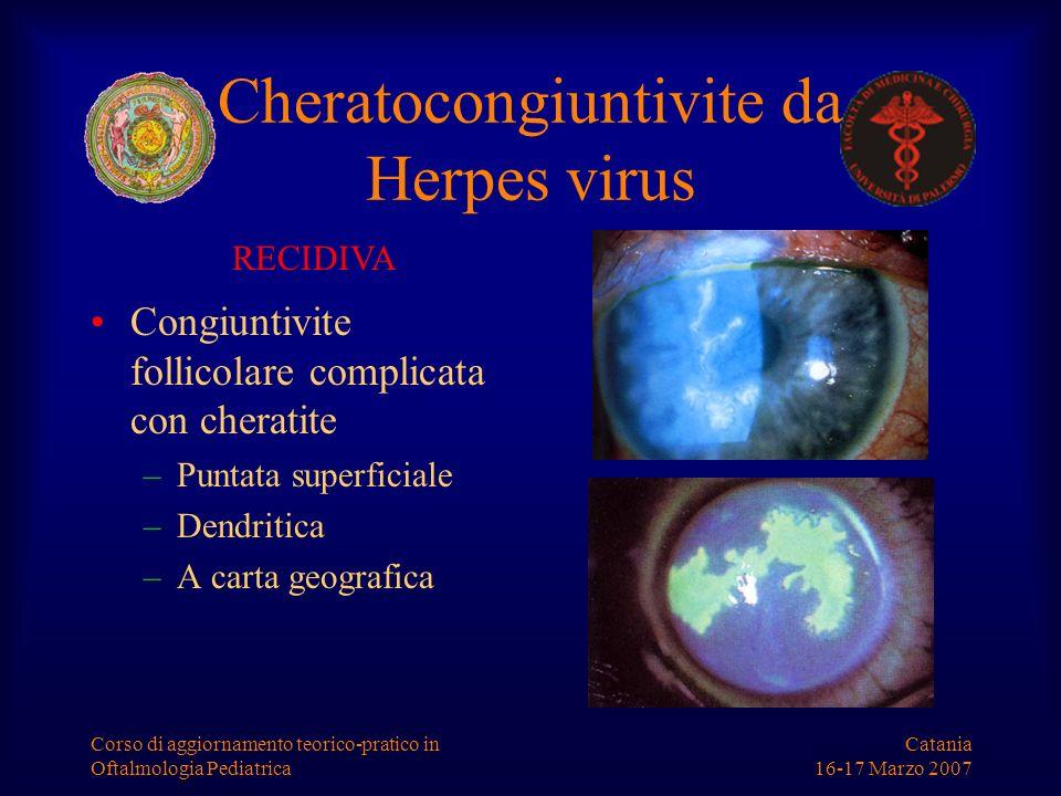 Catania 16-17 Marzo 2007 Corso di aggiornamento teorico-pratico in Oftalmologia Pediatrica RECIDIVA Cheratocongiuntivite da Herpes virus Congiuntivite