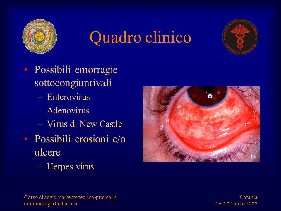 Catania 16-17 Marzo 2007 Corso di aggiornamento teorico-pratico in Oftalmologia Pediatrica Quadro clinico Possibili emorragie sottocongiuntivali –Ente