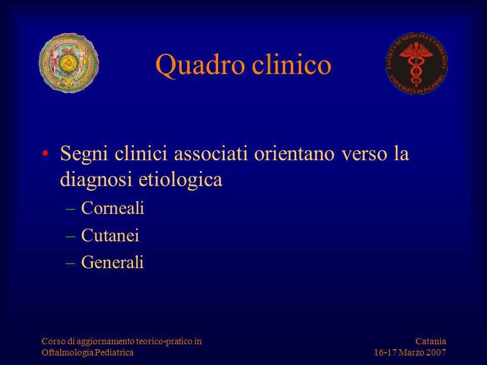 Catania 16-17 Marzo 2007 Corso di aggiornamento teorico-pratico in Oftalmologia Pediatrica Cherato-congiuntivite da Adenovirus Legata in genere al sierotipo 8 Più frequente negli adulti Congiuntivite follicolare Senso di C.E.