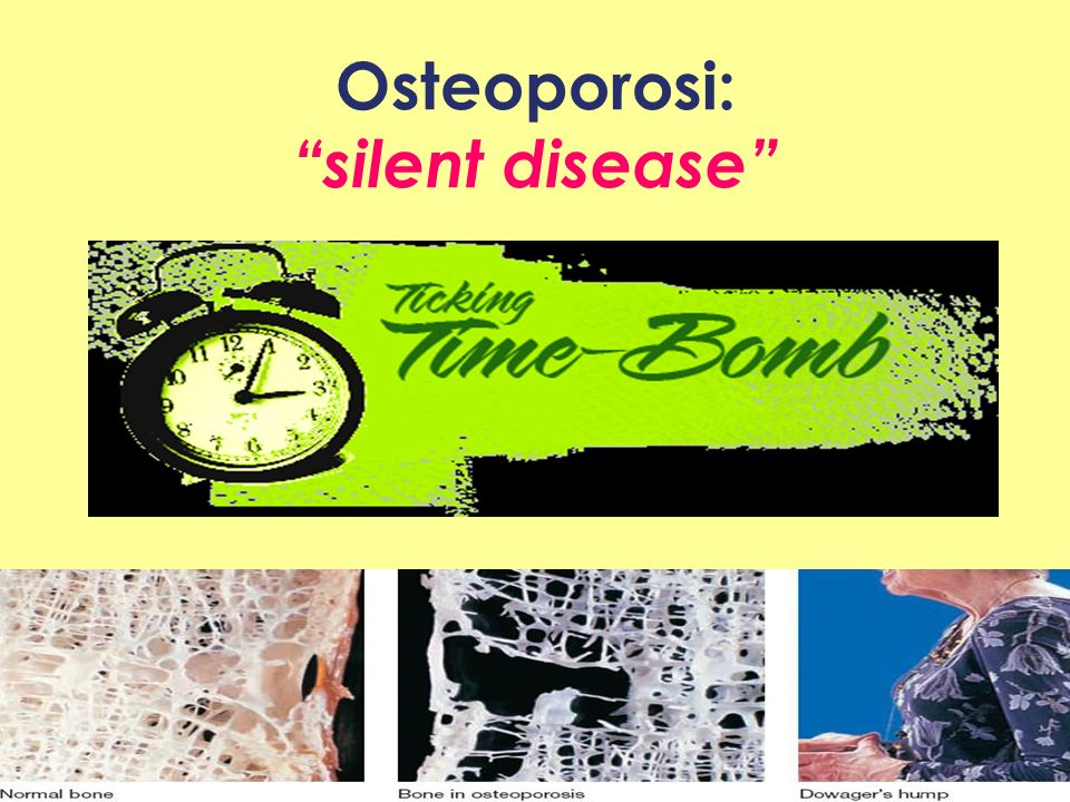 Osteoporosi: silent disease Where Healthcare Meets Policy