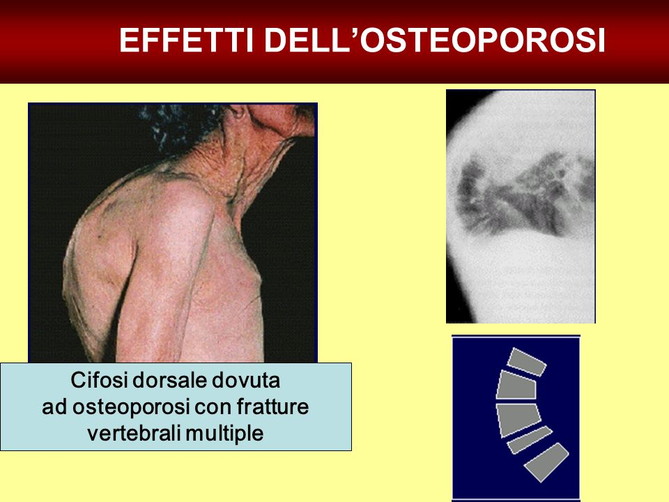 Cifosi dorsale dovuta ad osteoporosi con fratture vertebrali multiple EFFETTI DELLOSTEOPOROSI