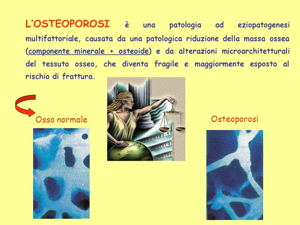 Osso normale Osteoporosi LOSTEOPOROSI è una patologia ad eziopatogenesi multifattoriale, causata da una patologica riduzione della massa ossea (compon